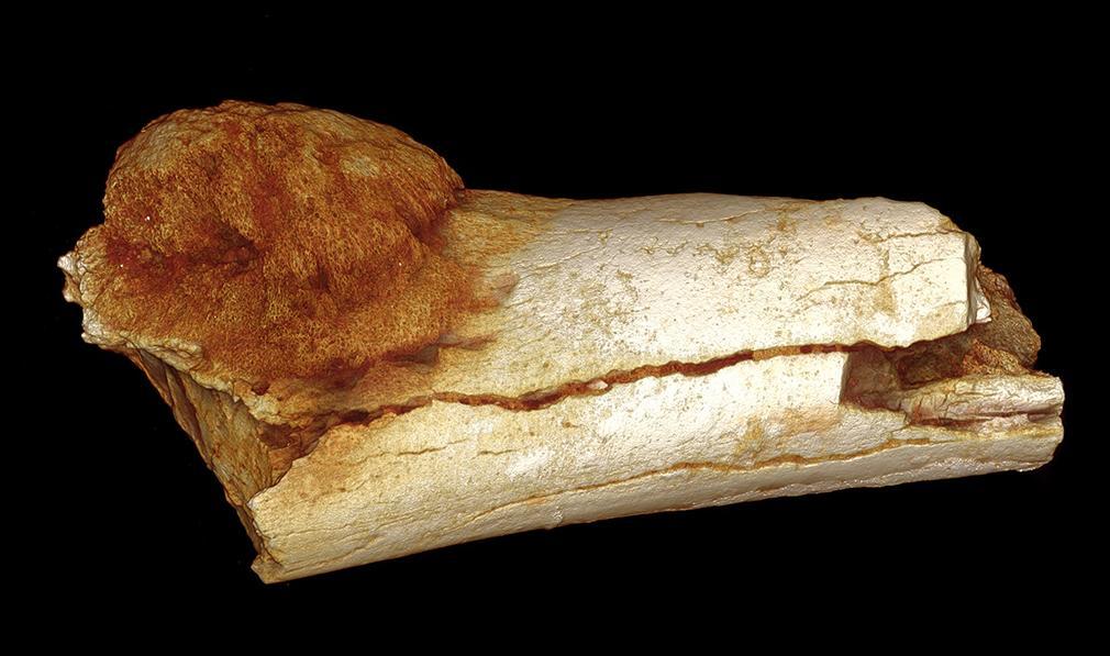 Hallada la prueba más antigua de cáncer en el árbol genealógico humano