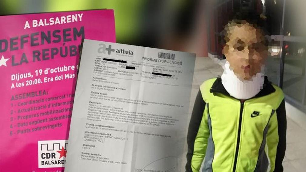 Agrede a un niño de 11 años y le dejan con collarín, por arrancar un cartel independentista