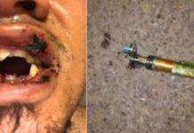 Le explota su cigarrillo electrónico y pierde 4 dientes
