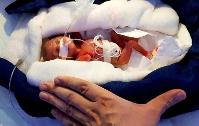 La increíble lucha de una niña prematura por sobrevivir, al nacer con un tamaño muy pequeño